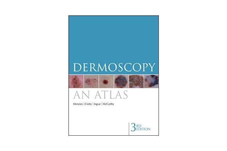 Dermoscopy - An Atlas