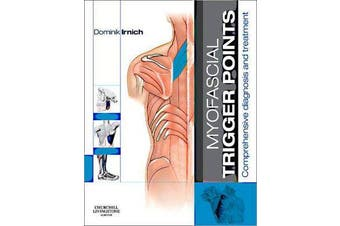 Myofascial Trigger Points - Comprehensive diagnosis and treatment