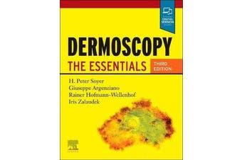 Dermoscopy - The Essentials