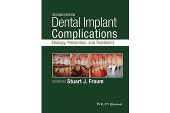 Dental Implant Complications - Etiology, Prevention, and Treatment