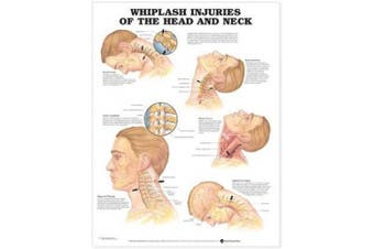 Whiplash Injuries of the Head and Neck Anatomical Chart