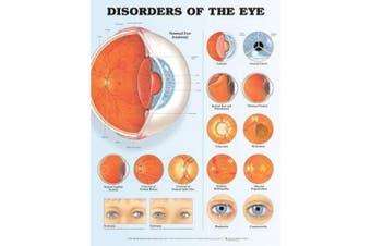 Disorders of the Eye Anatomical Chart