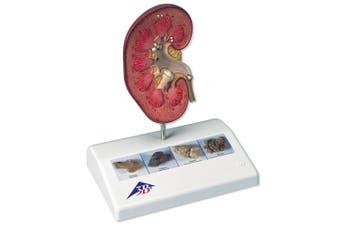 3B Scientific K29 Kidney Stone Model, 14cm x 9.9cm x 17cm