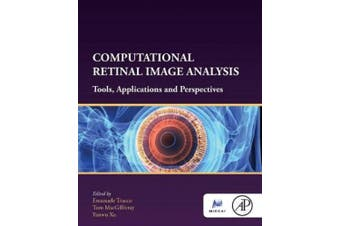 Computational Retinal Image Analysis: Tools, Applications and Perspectives