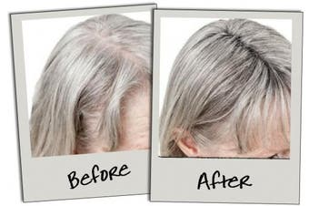 (10g) - 3d Hair Loss Fibres For Thinning Hair Dark Grey 10g
